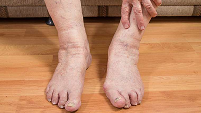 Cyprus Association of Registered Podiatrists - Blog, Ageing Feet