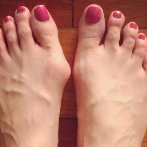Cyprus Association of Registered Podiatrists - Blog, Bunion
