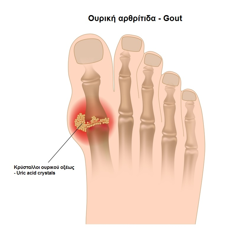 Cyprus Association of Registered Podiatrists - Blog, Gouty Arthritis