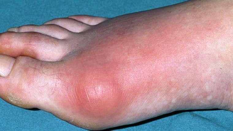 Cyprus Association of Registered Podiatrists - Blog, Gouty Arthritis