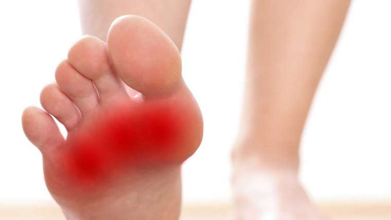 Cyprus Association of Registered Podiatrists - Blog, Metatarsalgia
