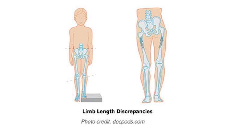 Cyprus Association of Registered Podiatrists - Services, Limb Length Discrepancy